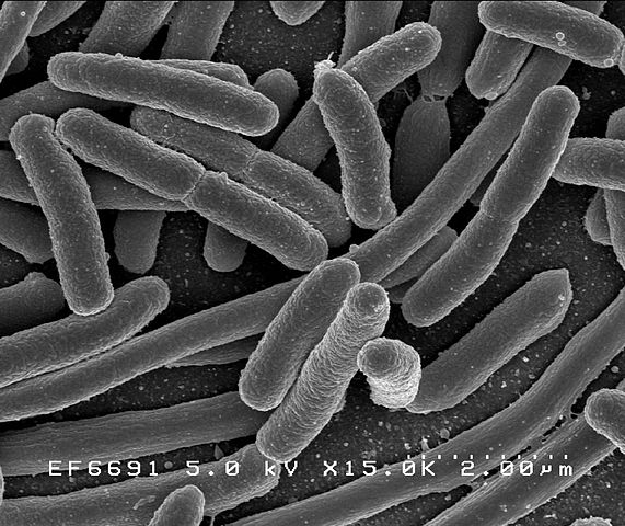 Escherichia coli - Photo: Rocky Mountain Laboratories, NIAID, NIH